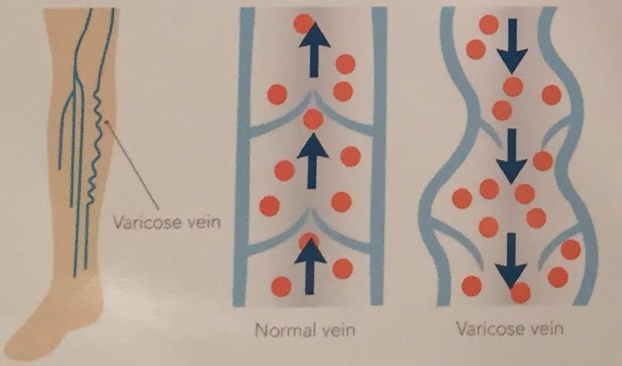 הזרקות קצף לנימים ולורידים ברגליים
