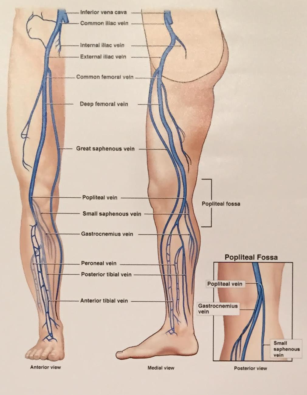 טיפול בורידים ברגליים
