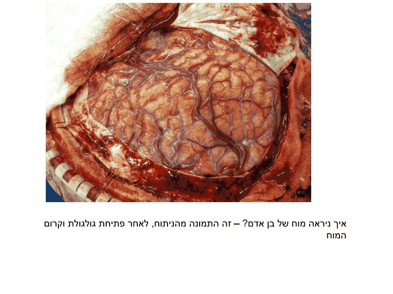 תמונה המתארת מח של בן אדם